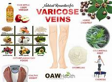 Varicose Vein Size Chart Varicose Veins What You Need To Know Oawhealth