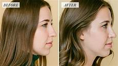 my rhinoplasty procedure story nose before and after