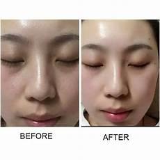dermedics mesowhite original korean bb glow best skin