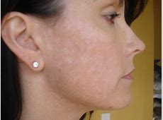 6 Ways To Get Rid Of White Spots On Face   HowHunter