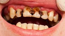 Dental Caries People With Hair Disorders May Be Prone To Dental Caries