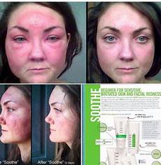 17 best images about skin care on before and