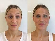 botox 174 dr erickson dermatology