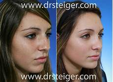 rhinoplasty before and after photos steiger