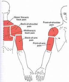 Arm Diagnosis Chart Upper Back And Shoulder Female Fitness Model Workout