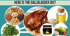 gallbladder diet pdf diet after gallstone removal