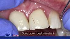 Crown Margin Design Strength Of All Ceramic Crown Is Influenced By The Margin