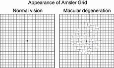 Amd Eye Chart Age Related Macular Degeneration Jama Jama Network