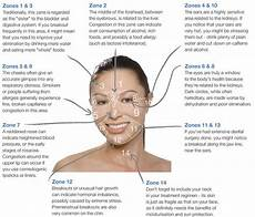 Chinese Acne Face Chart Acne Part I
