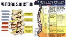Arm Diagnosis Chart Remember A Back Problem Is A Brain Problem Feldman