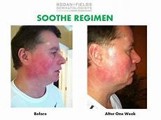 soothe before and after sensitive skin soothe regimen