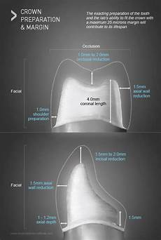 Crown Margin Design Crowns Common Materials Used For Making Dental Crowns