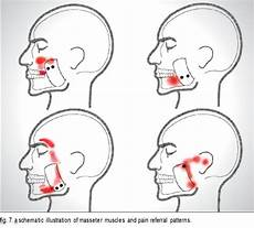 Myofascial What Is This Orofacial How Fixed