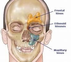 Sinus Anatomy Minimally Invasive Nasal Allergy And Sinus Surgery Larian Md