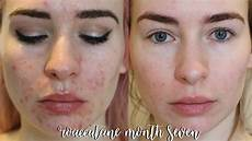 roaccutane month 7 update side effects