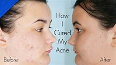 how i cured my acne curology 2 month results