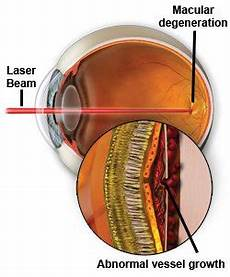 Light Uses In Medicine Spie Professional Lasers In Medicine