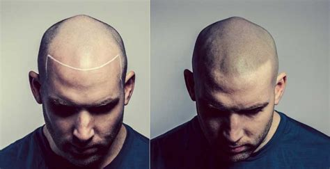 tattooed hair for bald men does islam allow hair tattoos to replace hair loss