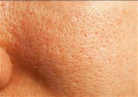 Acne Licuid best foundation for acne prone skin