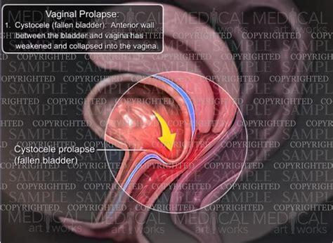 prolapse cystocele fallen bladder