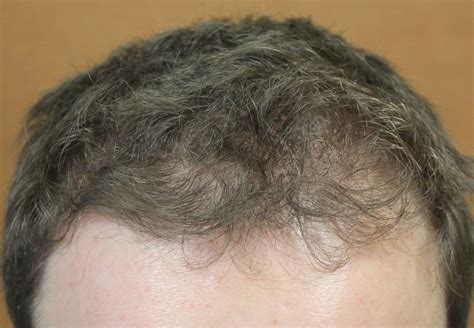 thining hair in men front minoxidil does it help with hair loss in the front