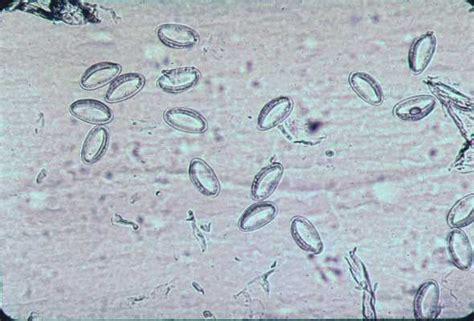 scotch test enterobius vermicularis laboratories