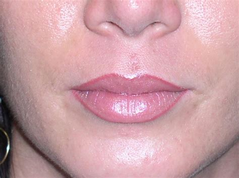 tattooed lips cosmetic lip procedures a guide to lip