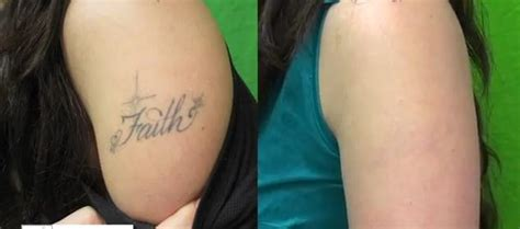 laser tattoo removal pain after laser removal before and after
