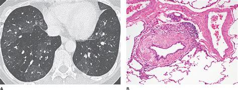 mosaic pattern obliterative bronchiolitis bronchiolitis thoracic key