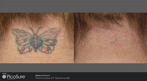 ottawa tattoo removal revolutionary removal ottawa skins derma care
