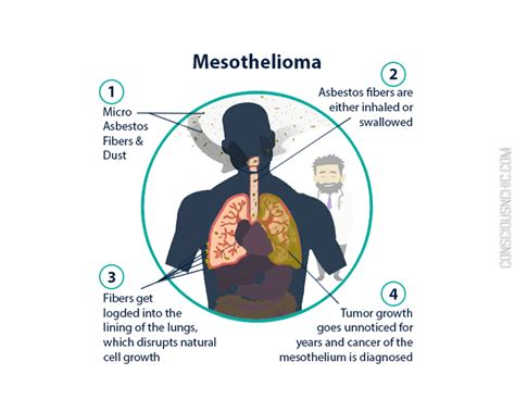 Compensation Mesothelioma 1 by Asbest Symptome Malignant Mesothelioma Compensation