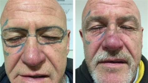 face tattoo removal needs laser surgery to remove sunglasses tattooed on