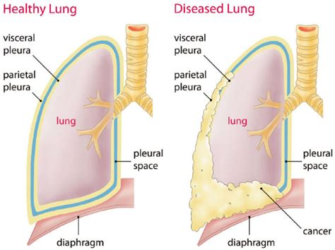 Pleural Mesothelioma Stages 5 by Malignant Pleural Mesothelioma Survival Rates Improving
