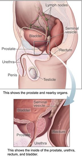 orgasim after c section prostate the full wiki