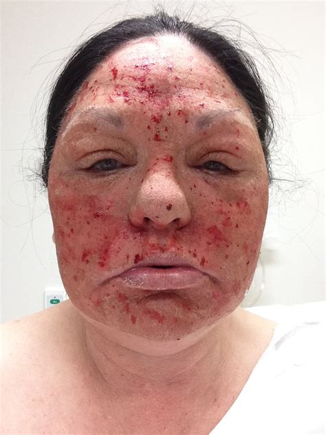 100 post my 3rd treatment of laser treatment laser resurfacing patient diary before and after gallery