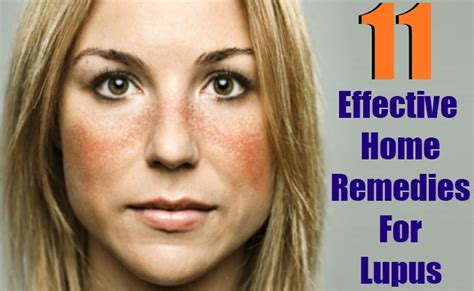 Home Remedies For Lupus by Home Remedies For Joint Treatment Cure Remedy