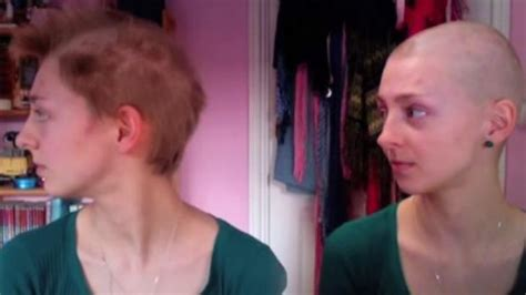 youtube s rebecca brown shaves her head to combat hair woman who uncontrollably ripped her hair out becomes
