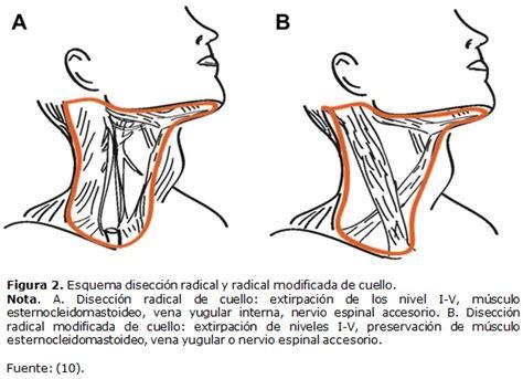 caracterizacion de cadenas ganglionares cervicales the evident effectiveness of superselective neck dissection