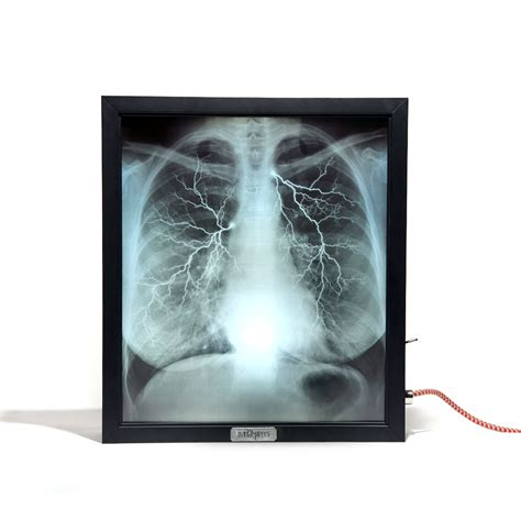 x ray light box for sale mentalpieces x ray lightbox internal medicine