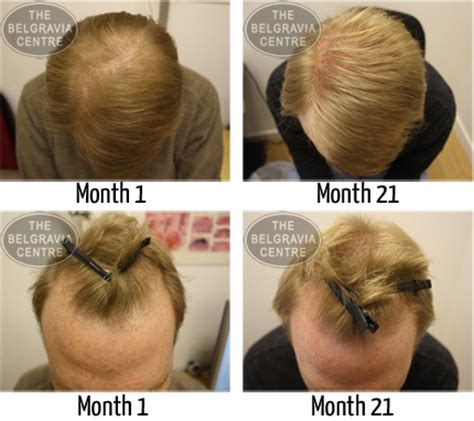 propecia or rogaine for frontal hair loss receding hairline female frontal hair loss hot girls wallpaper