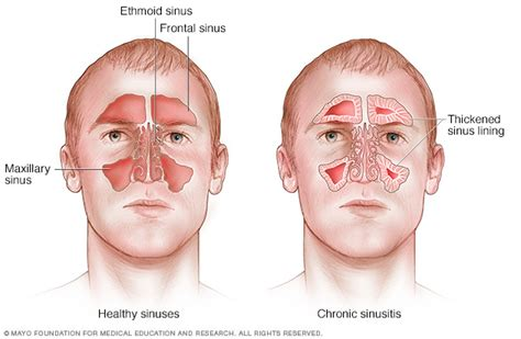 Can Detoxing Cause Sinus Inflammation by Chronic Sinusitis Disease Reference Guide Drugs