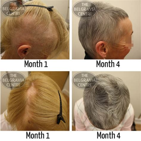 best haircuts for alopecia hair growth success i am recovering well and enjoying
