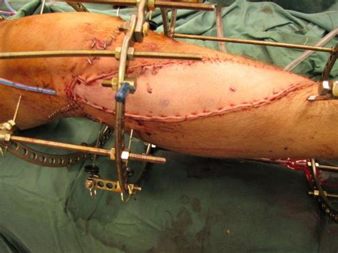boat propeller injury photos boat propeller accidents www pixshark images