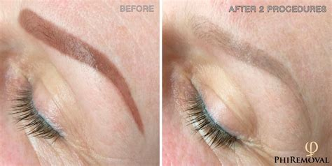 permanent tattoo removal at home phiremoval and permanent makeup removal permanent