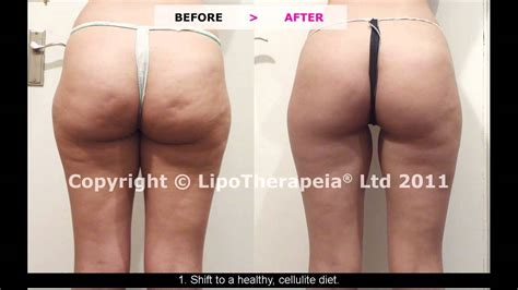 Miller Has Stretch Marks And Cellulite by Home Remedies For Cellulite And Stretch Marks