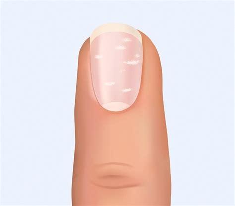 imagenes de uñas con onicomicosis 11 secretos que pueden revelar las u 241 as sobre nuestra salud