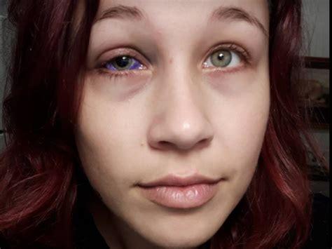 tattoo eyebrows regina ottawa woman who got botched eyeball tattoo i d rather