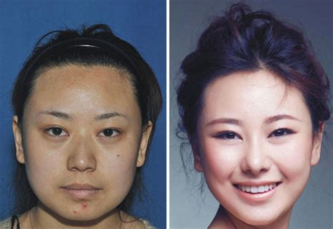 Has Surgery by Nose Before And After Asian Surgery Pics