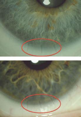 contact lens spectrum back to basics: soft lenses for