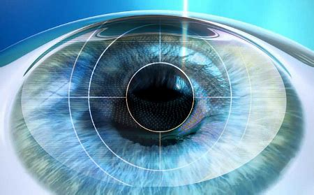 bausch lomb ibm develop app to assist cataract surgeons
